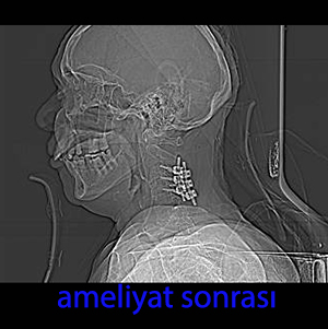 lateral mass vidası